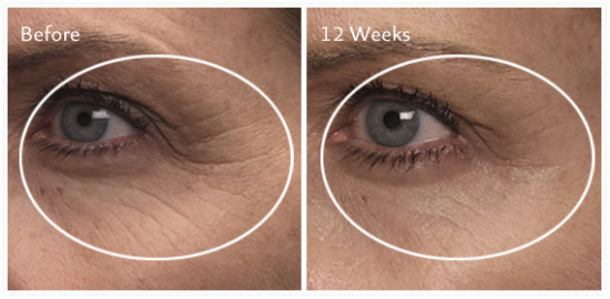 Myth Anti Aging Wrinkle Creams Can Erase Wrinkles