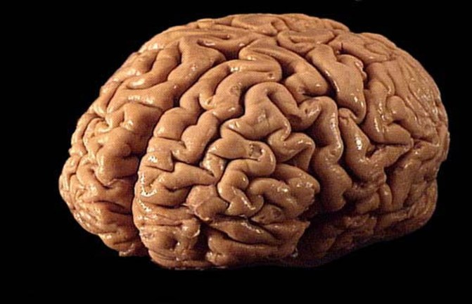Brain Samples Stolen From Indiana Medical Museum